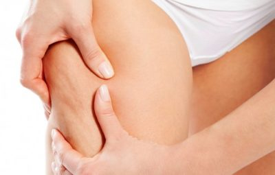 La cellulite : comment s'en débarrasser ?